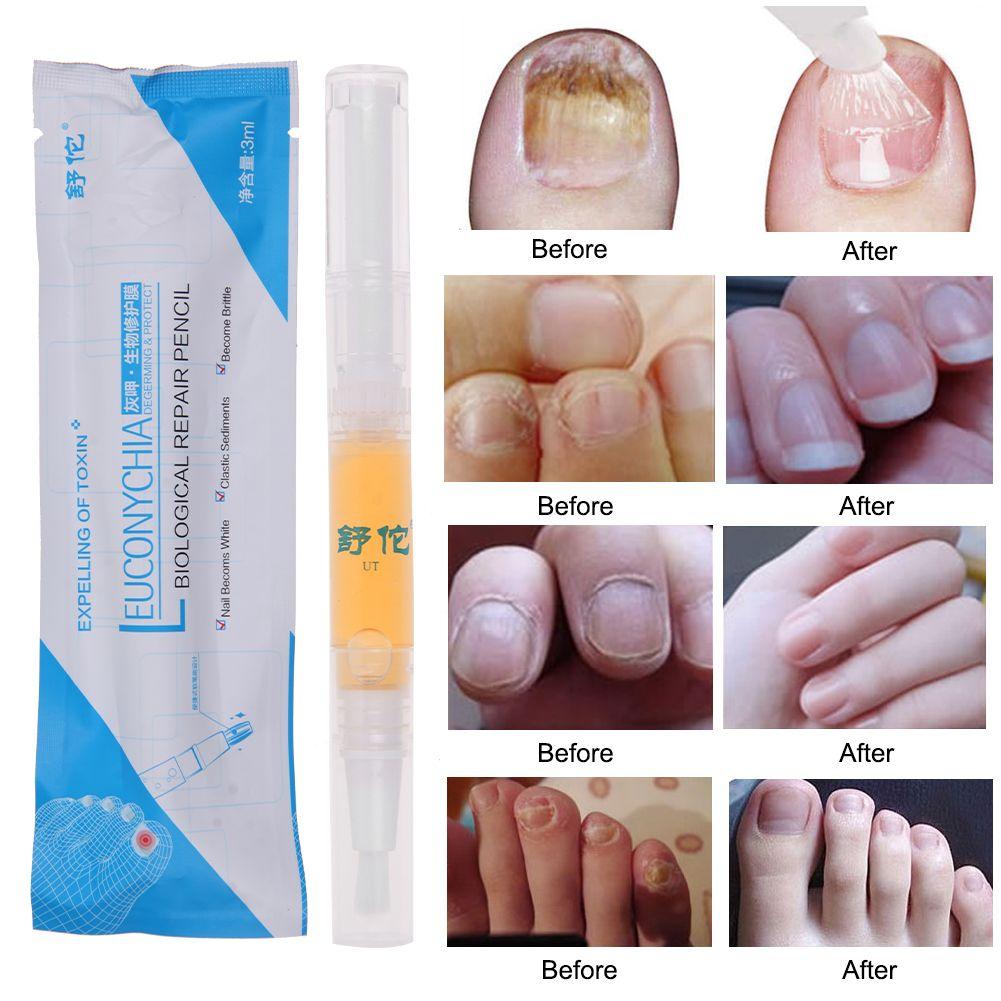 Nail Repair Liquid Treatment Pen Onychomycosis Paronychia Anti Nail ...